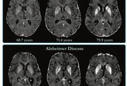 Radiology:评价AD患者脑组织铁含量水平不要再用老一套!影像学及解剖学上的新角度