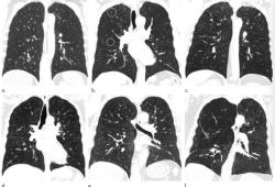 Radiology:吸烟人群看过来,CT的这一表现一定不要忽略!