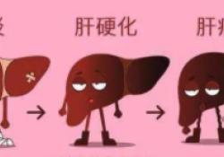 "Lancet oncol:Sintilimab联合<font color=""red"">贝</font>伐单抗生物仿制药治疗不能切除的肝癌的预后明显优于索拉<font color=""red"">非</font>尼!"