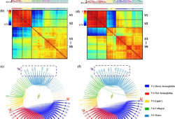 Photoacoustics:通过光声光谱学和机器学习结合有益于诊断前列腺癌