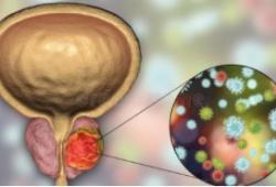 Ann Oncol:转移性激素敏感性前列腺癌的原发癌组织的转录谱特征及与临床预后的相关性