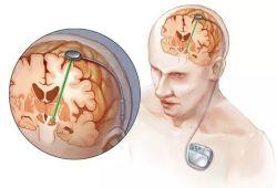 Neuromodulation:深部脑刺激治疗帕金森病的一些较少研究的方面:植入手术、住院治疗和死亡