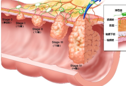 JAMA Netw Open:年轻结直肠癌患者生存率反而更低,这是什么道理?