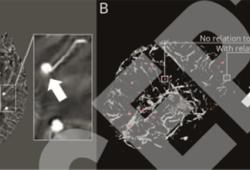 Neurology:7T MRI发现部分脑微出血源自静脉