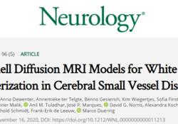 "Neurology:多重扩散成像<font color=""red"">模型</font>可用于评估脑小血管疾病的白质表征"