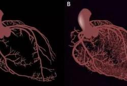 BMJ:重磅!冠脉重建后DAPT治疗的核心地位被动摇,P2Y12抑制剂单药治疗或收益更大