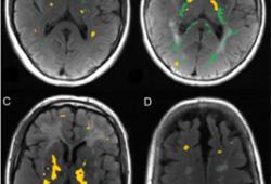 Brain:脑小血管病的小胶质细胞活化和血脑屏障通透性
