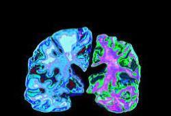 Alzheimer&Demetia:如何更好识别老年痴呆患者情绪障碍?