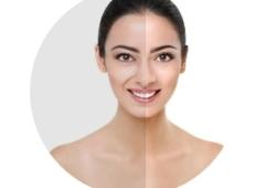 上市后11年PMS:见证瑞蓝®改善鼻唇沟的长期效果和安全性