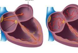"""JAMA:小小一枚""""纽扣"""",能较传统ECG更好识别心房颤动!"""