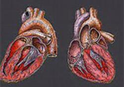 """JAHA:2型糖尿病低风险人群他汀类药物一级预防依从性与心血管风险和<font color=""""red"""">死亡</font>相关"""