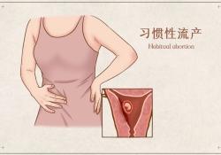 怀孕了,为何却总是流产?这些实验室检查很重要!