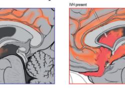 "J CEREBR BLOOD F M:脑脊液血红蛋白促进蛛网膜下腔出血相关的<font color=""red"">继发性</font>脑损伤"