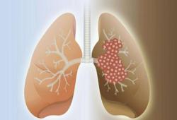 Br J Cancer:微波消融术治疗非小细胞肺癌根治性手术后寡复发患者