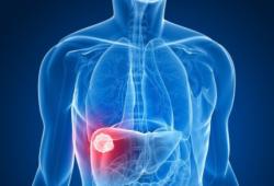Nat Commun:单细胞RNA测序揭示肝细胞癌的免疫抑制景观和肿瘤异质性