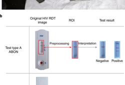 Nature Medicine:深度学习快速检测艾滋病