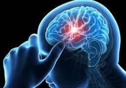 一文读懂脑梗塞的诊断与治疗