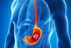 JGH:胸腺素 β10 (TMSB10)可作为胃癌侵袭性的潜在预后预测生物标志物