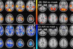 NeuroImage:戴口罩对fMRI BOLD的影响