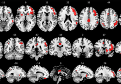 "NeuroImage:研究工作记忆任务诱发的神经激活的<font color=""red"">新方</font><font color=""red"">法</font>:PET/fMRI同步研究"