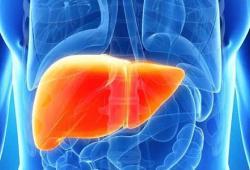 JGH:肝纤维化和脂肪肝与心血管疾病风险独立相关