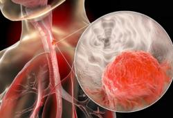 Nat Commun:METTL3通过m6A修饰介导APC的表达促进肿瘤的发生发展