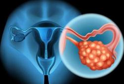 Br J Cancer:他汀類藥物的使用與卵巢癌患者存活率的關聯性研究