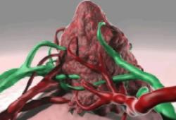 Eur J Cancer:瑞戈非尼或可成为复发性/难治性实体肿瘤患儿的新选择!