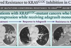 NEJM:KRAS抑制剂获得性耐药机制研究