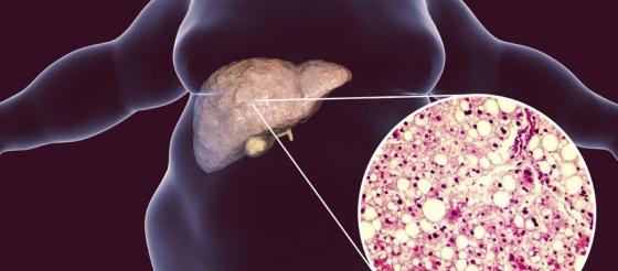 柳葉刀子刊重磅發現,脂肪肝可導致多系統疾病