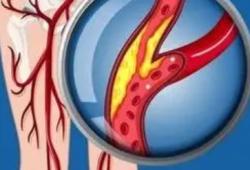 JACC:外周動脈疾病患者血脂管理的情況