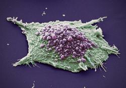 Clin Cancer Res: 考比替尼(cobimetinib)+ 维莫非尼(vemurafenib)对比安慰剂+ 维莫非尼(vemurafenib)治疗BRAF V600突变阳性转移性黑色素瘤的疗效和安全性: coBRIM研究5年长期随访结果