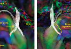 Pain:脑干三叉神经纤维微结构异常与三叉神经痛各亚型的治疗反应有关