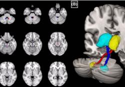 "Movement Disorder:颈肌张力障碍患者<font color=""red"">的</font>齿状核丘脑束<font color=""red"">的</font>显微结构异常"