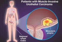 NEJM:纳武单抗用于高危肌肉侵袭性尿路上皮癌根治术后辅助治疗