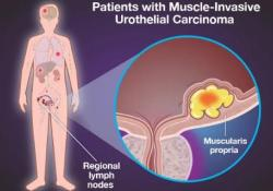 "NEJM:纳武单抗用于高危肌肉侵袭性<font color=""red"">尿路</font>上皮癌根治术后辅助治疗"
