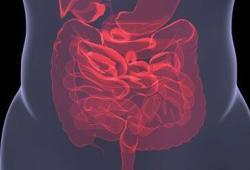 JGastroenterologyH:氨甲环酸对结肠憩室出血患者的影响
