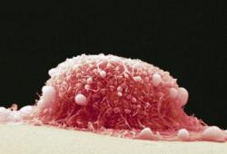 Br J Cancer:去泛素化酶USP9X:口腔癌的潜在治疗靶标