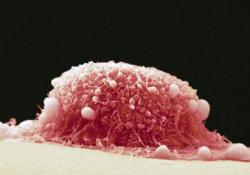 """Br J Cancer:去泛素化酶USP9<font color=""""red"""">X</font>:口腔癌的潜在治疗靶标"""