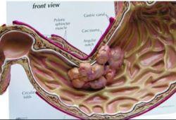 GUT:不容小觑!这类患者应定期进行胃镜检查以期早期发现胃癌!