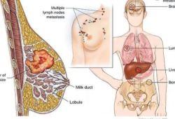 JNCI:肥胖、缺乏运动增加乳腺癌风险,那么会对化疗结果产生什么影响呢?