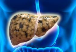 Am J Gastr:儿童和成人期被动吸烟与中年时患非酒精性脂肪肝的关系