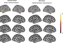 Translational Psychiatry:岛叶形态学改变与精神障碍临床表型相关