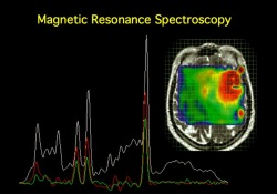 ASCO-2021速递:光谱MRI可指导胶质母细胞瘤放疗,安全有效