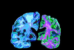 Brain:这组血浆标志物或许能预测未来脑萎缩和痴呆