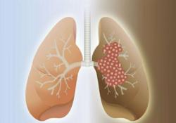 "Nat Commun:RFC4/<font color=""red"">Notch</font>1正反馈回路可促进非小细胞肺癌的转移和干细胞特性"