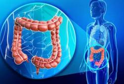 ASCO2021:免疫表達信號可預測轉移性結直腸癌的治療反應和生存