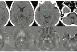 Radiology:你还在为CT高密度病灶是出血还是钙化而烦恼吗?