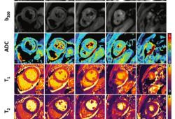 Radiology:DWI在急性心肌梗死再灌注损伤中的应用
