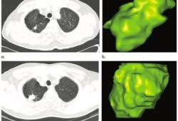 Radiology:遇到肺结节,仅观察肉眼征象已远远不够!